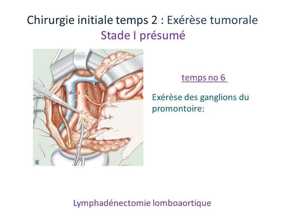 Lymphadénectomie lomboaortique Chirurgie initiale temps 2 : Exérèse tumorale Stade I présumé Exérèse des ganglions du promontoire: temps no 6