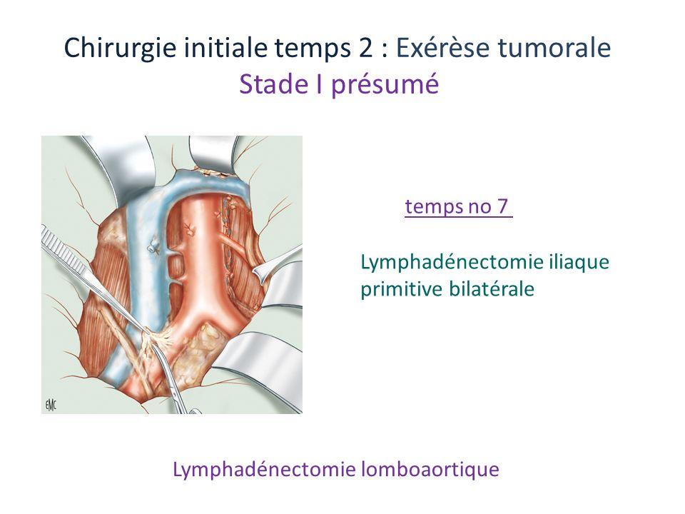Lymphadénectomie lomboaortique Chirurgie initiale temps 2 : Exérèse tumorale Stade I présumé Lymphadénectomie iliaque primitive bilatérale temps no 7