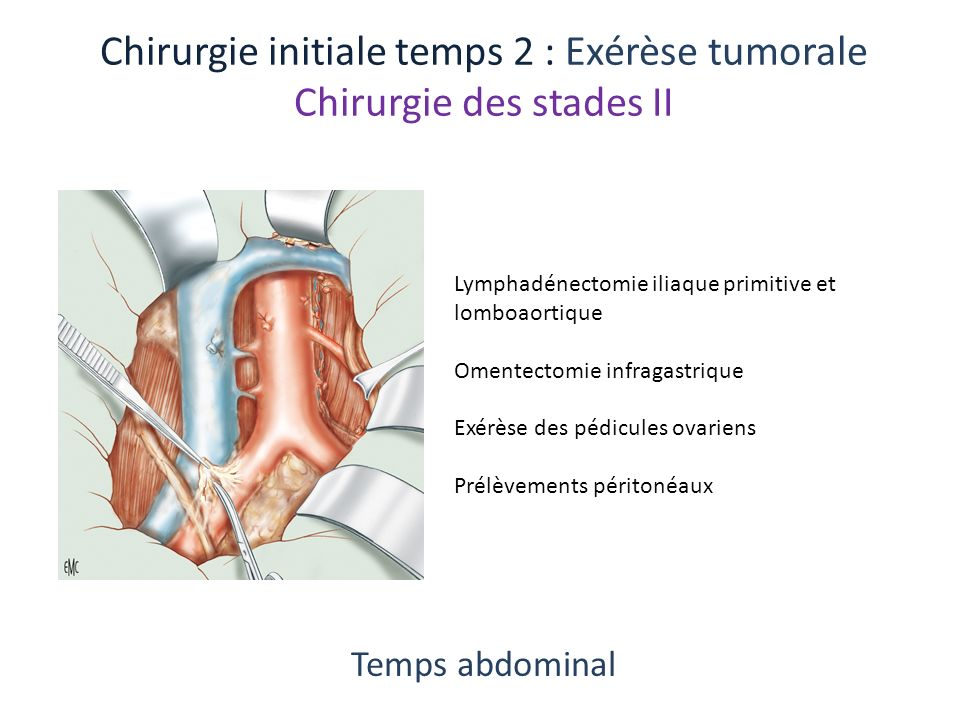 Chirurgie initiale temps 2 : Exérèse tumorale Chirurgie des stades II Temps abdominal Lymphadénectomie iliaque primitive et lomboaortique Omentectomie