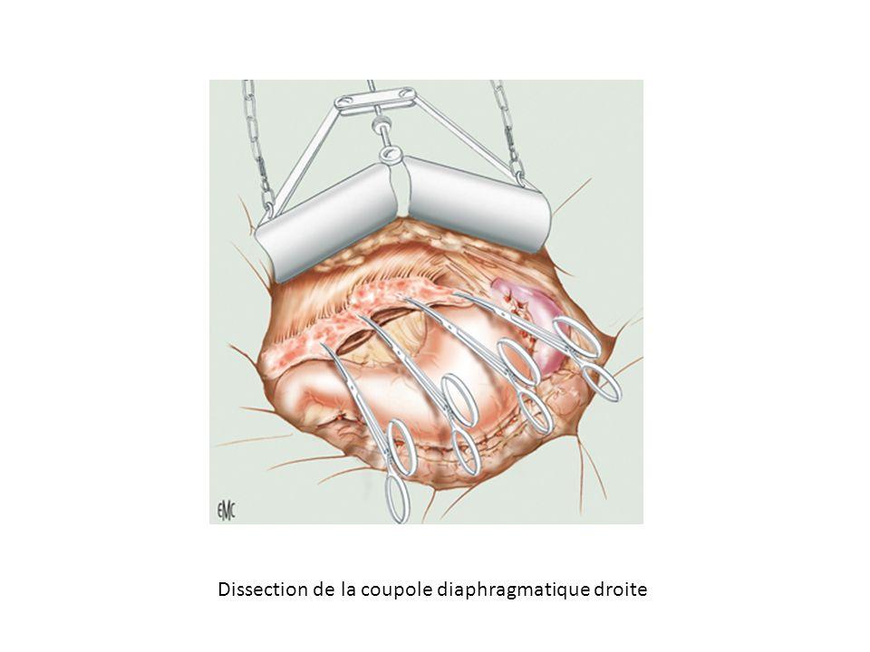Dissection de la coupole diaphragmatique droite