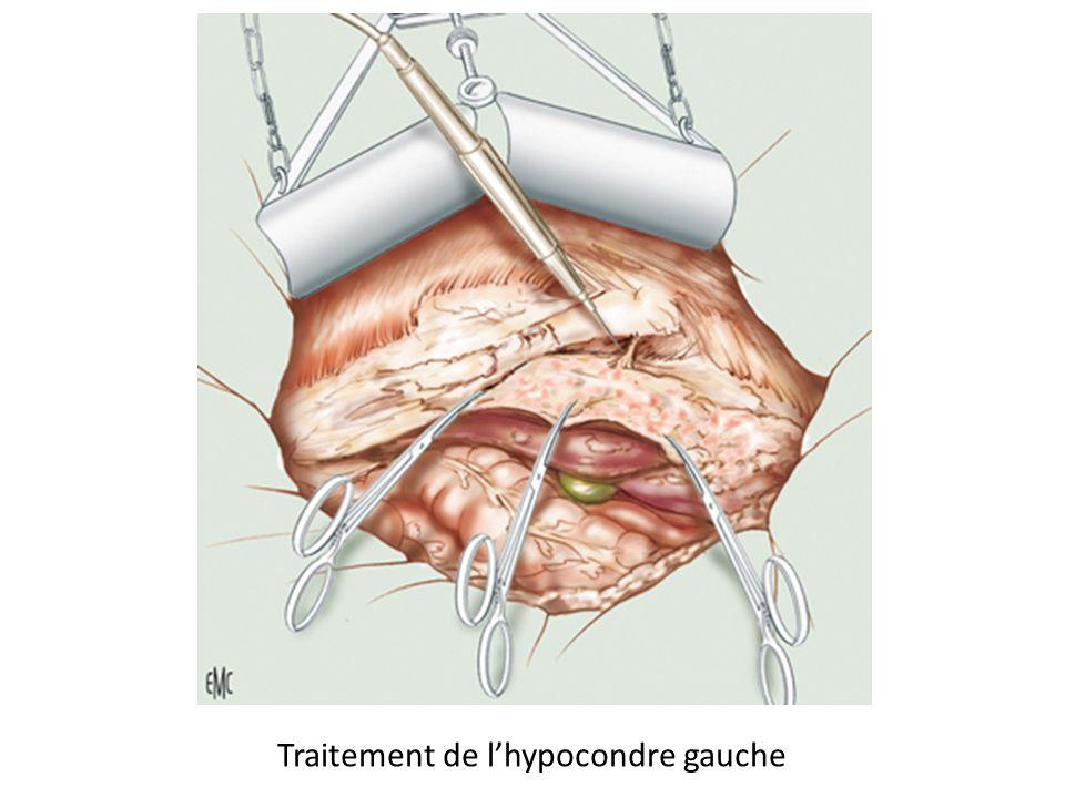 Traitement de lhypocondre gauche