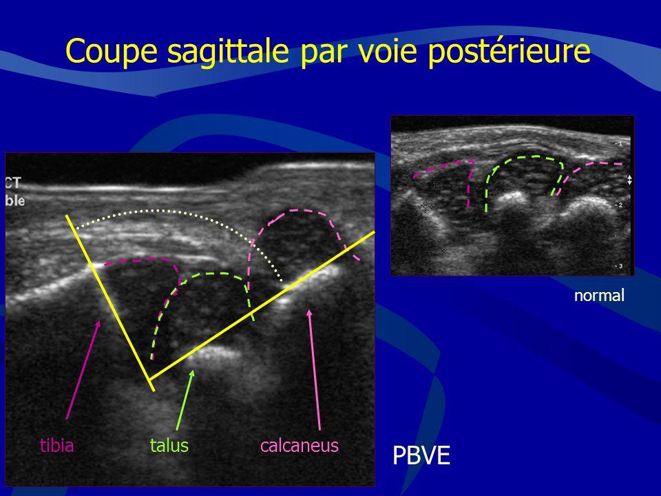 PBVE Coupe sagittale par voie postérieure tibiataluscalcaneus normal