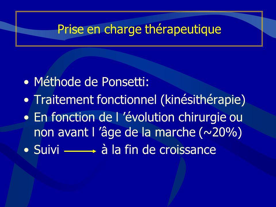 Prise en charge thérapeutique Méthode de Ponsetti: Traitement fonctionnel (kinésithérapie) En fonction de l évolution chirurgie ou non avant l âge de