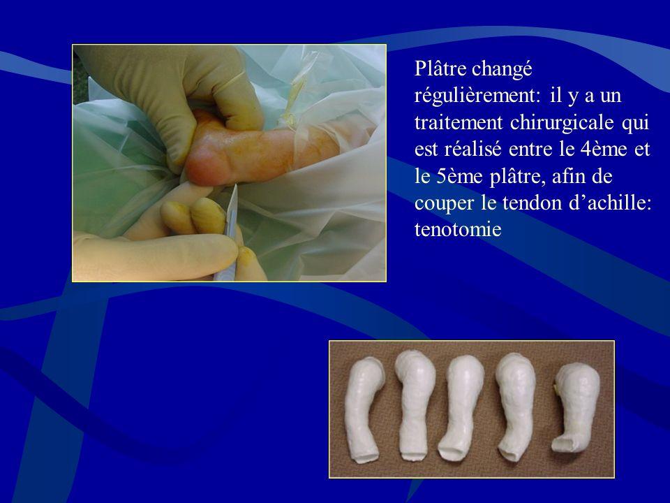 Plâtre changé régulièrement: il y a un traitement chirurgicale qui est réalisé entre le 4ème et le 5ème plâtre, afin de couper le tendon dachille: ten