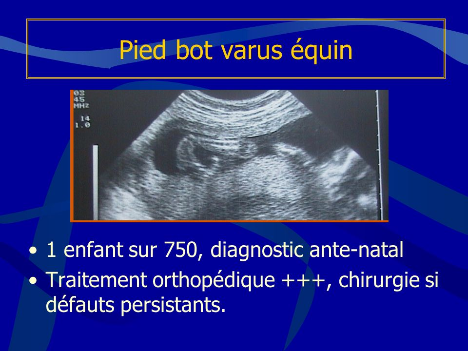 Allongement du calcaneus / Evans