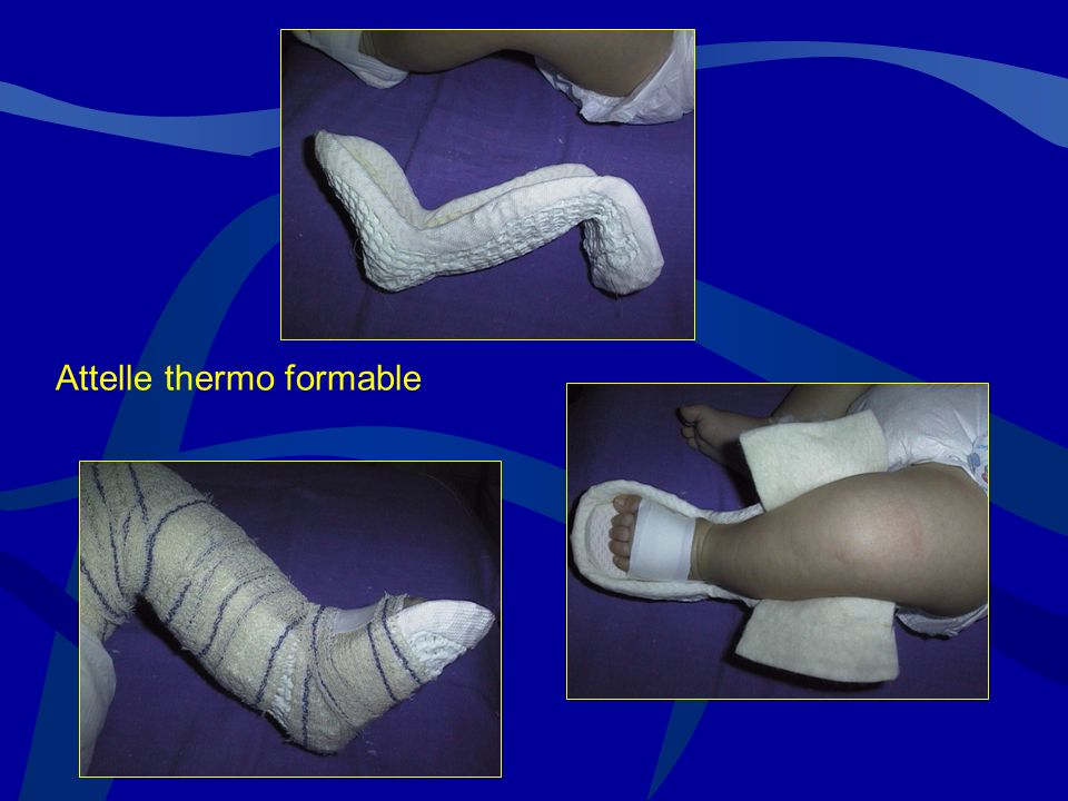 Attelle thermo formable