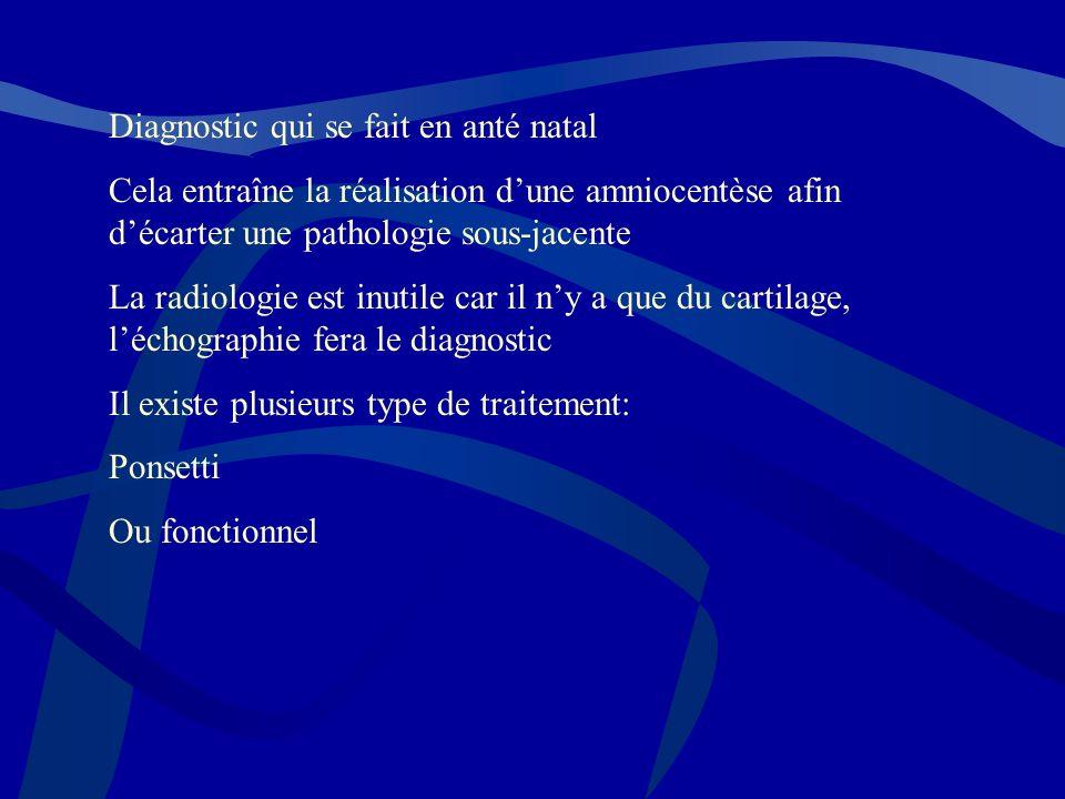 Diagnostic qui se fait en anté natal Cela entraîne la réalisation dune amniocentèse afin décarter une pathologie sous-jacente La radiologie est inutil