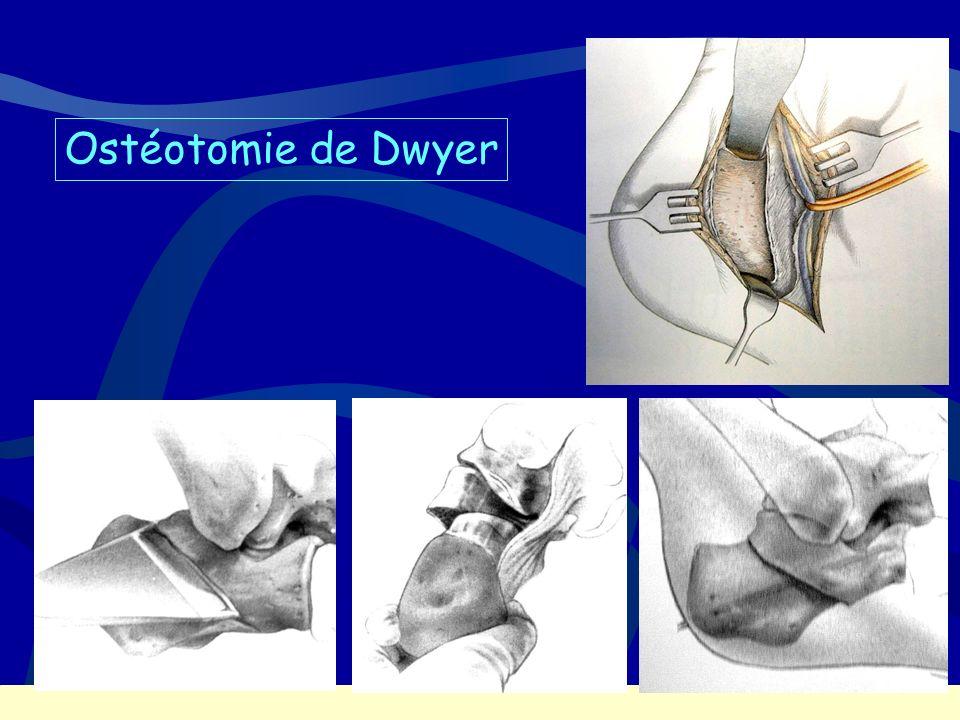 Ostéotomie de Dwyer