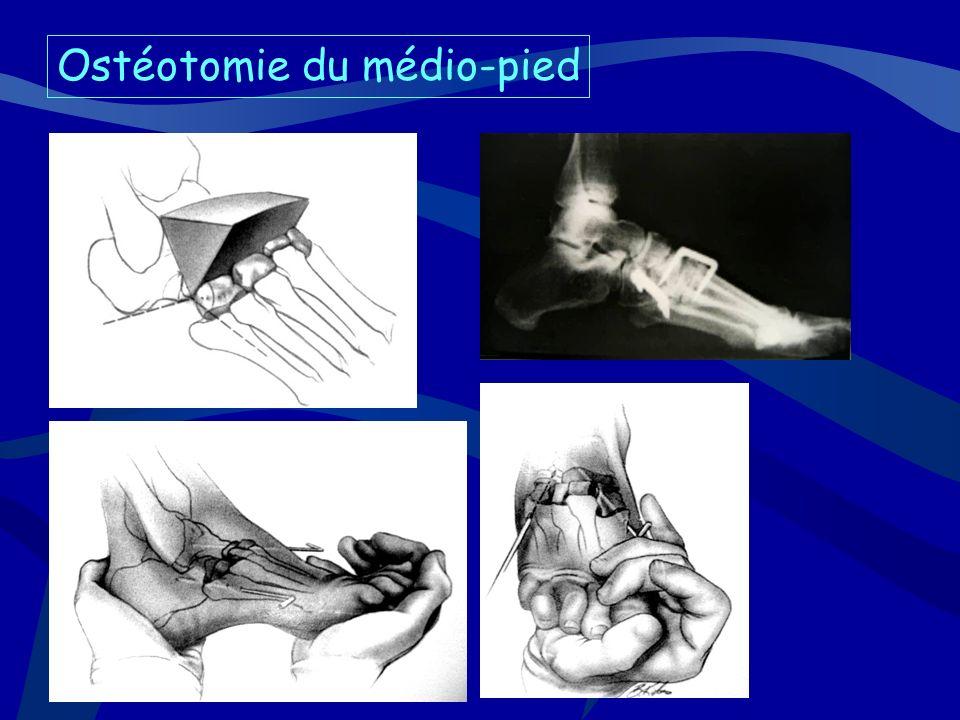 Ostéotomie du médio-pied