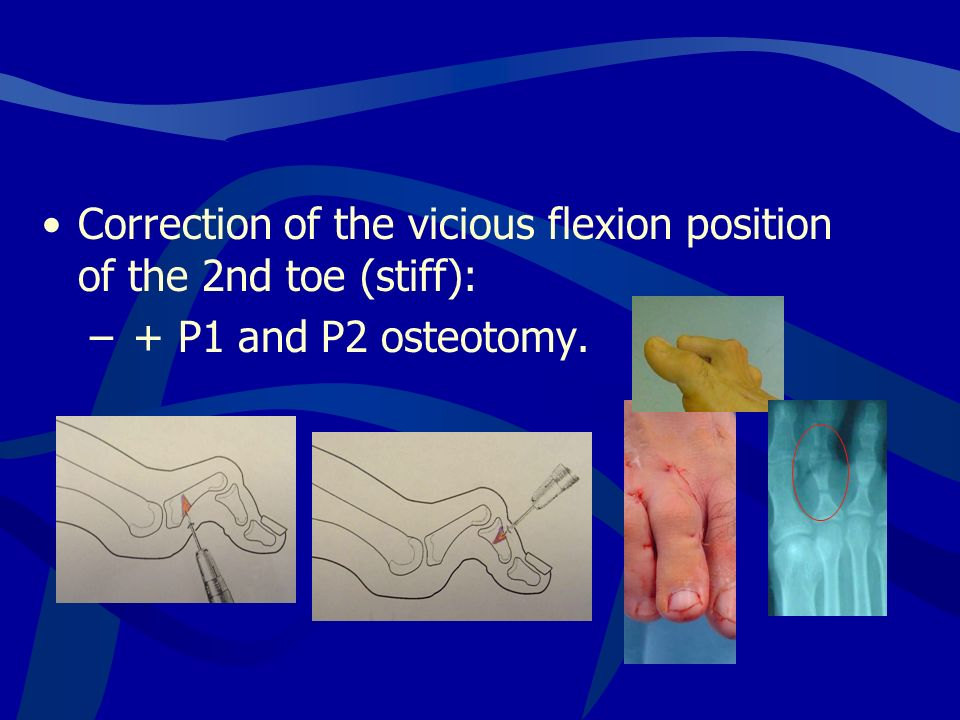 Correction of the vicious flexion position of the 2nd toe (stiff): – + P1 and P2 osteotomy.