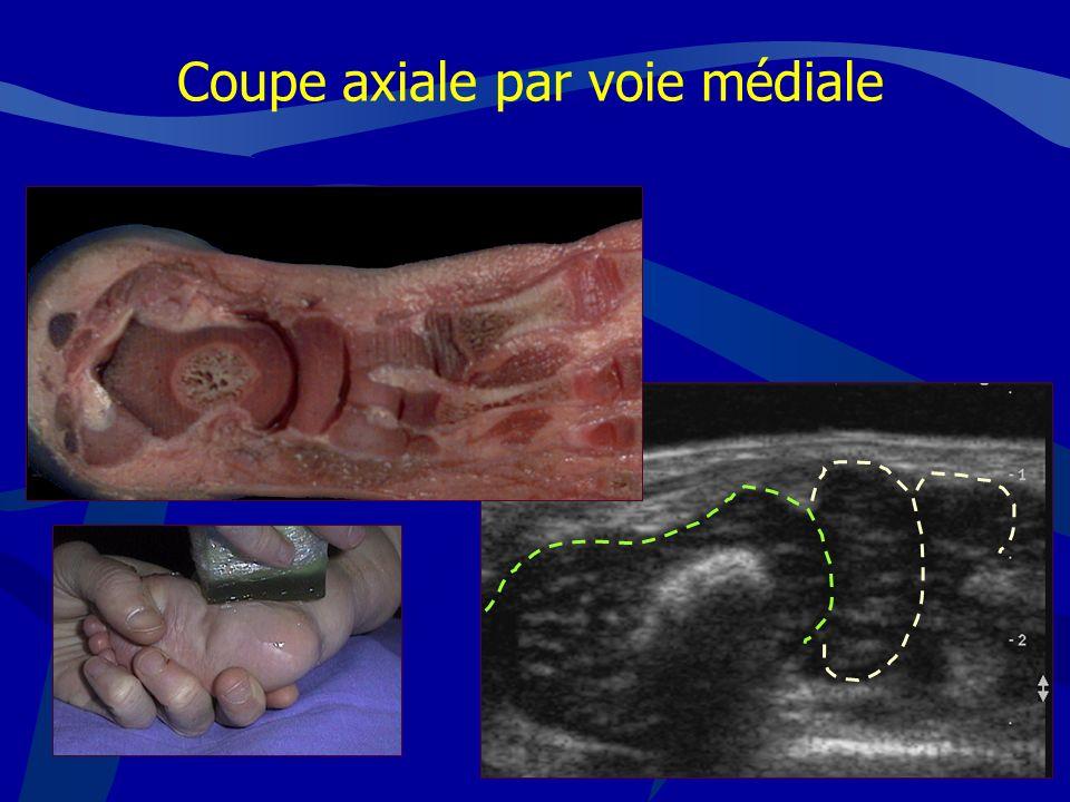 NAVICULAIRETALUS Coupe axiale par voie médiale