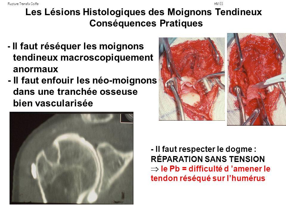Rupture Transfix Coiffe HM 03 Les Lésions Histologiques des Moignons Tendineux Conséquences Pratiques - Il faut réséquer les moignons tendineux macroscopiquement anormaux - Il faut enfouir les néo-moignons dans une tranchée osseuse bien vascularisée - Il faut respecter le dogme : RÉPARATION SANS TENSION le Pb = difficulté d amener le tendon réséqué sur lhumérus