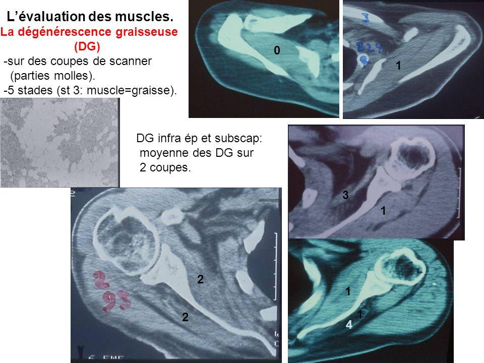 Les traitements non réparateurs Par lindolence quil procurent, ils doivent permettre de retrouver la fonction de base améliorée par la fonction des muscles dont les tendons sont encore insérés et dont les DG (et donc la fonction) ne seront pas détériorées par une tentative de suture (si IDG < 2.25).