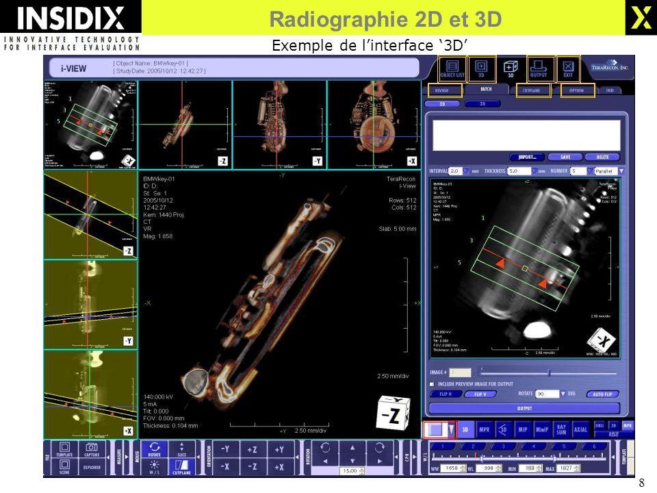 8 Exemple de linterface 3D Radiographie 2D et 3D