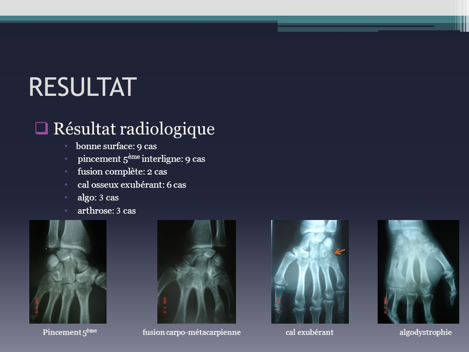 RESULTAT Résultat radiologique bonne surface: 9 cas pincement 5 ème interligne: 9 cas fusion complète: 2 cas cal osseux exubérant: 6 cas algo : 3 cas