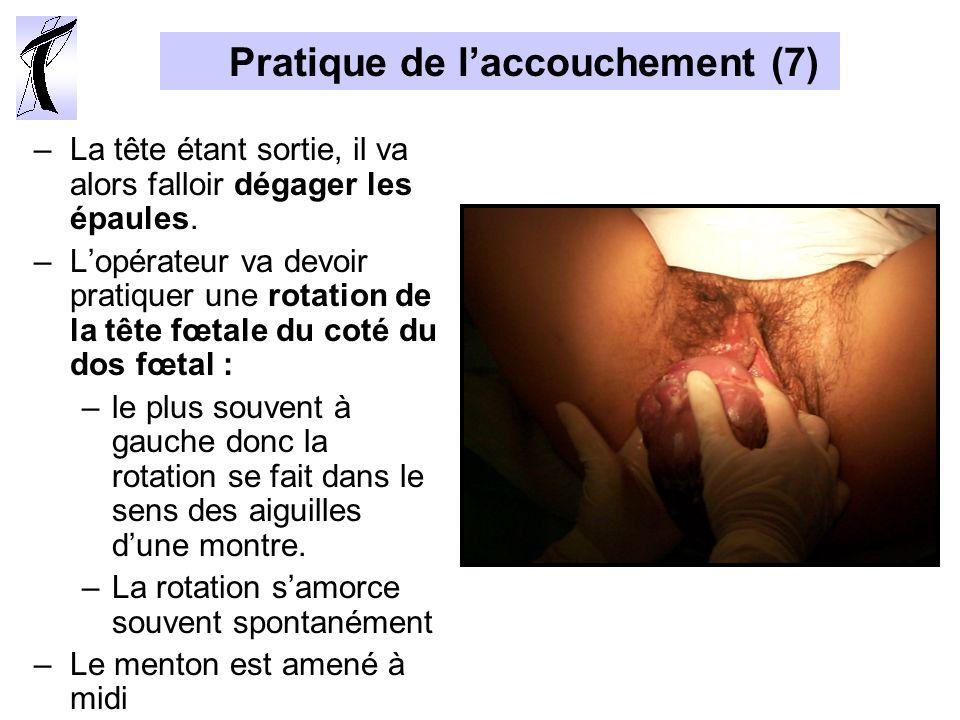 Pratique de laccouchement (7) –La tête étant sortie, il va alors falloir dégager les épaules. –Lopérateur va devoir pratiquer une rotation de la tête