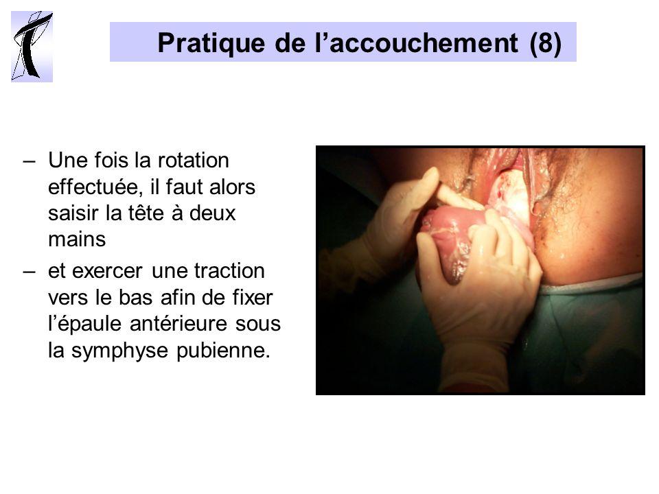 Pratique de laccouchement (8) –Une fois la rotation effectuée, il faut alors saisir la tête à deux mains –et exercer une traction vers le bas afin de