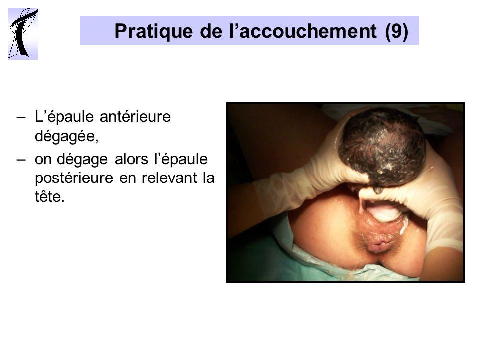 Pratique de laccouchement (9) –Lépaule antérieure dégagée, –on dégage alors lépaule postérieure en relevant la tête.