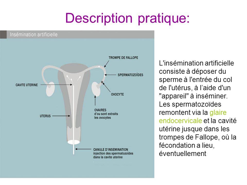 Description pratique: L'insémination artificielle consiste à déposer du sperme à l'entrée du col de l'utérus, à laide d'un