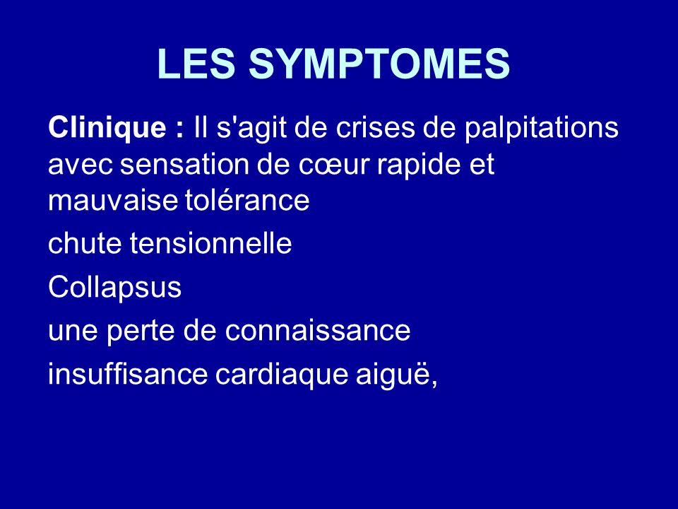 LES SYMPTOMES Clinique : Il s'agit de crises de palpitations avec sensation de cœur rapide et mauvaise tolérance chute tensionnelle Collapsus une pert