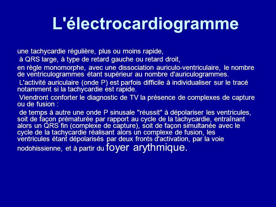L'électrocardiogramme une tachycardie régulière, plus ou moins rapide, à QRS large, à type de retard gauche ou retard droit, en règle monomorphe, avec
