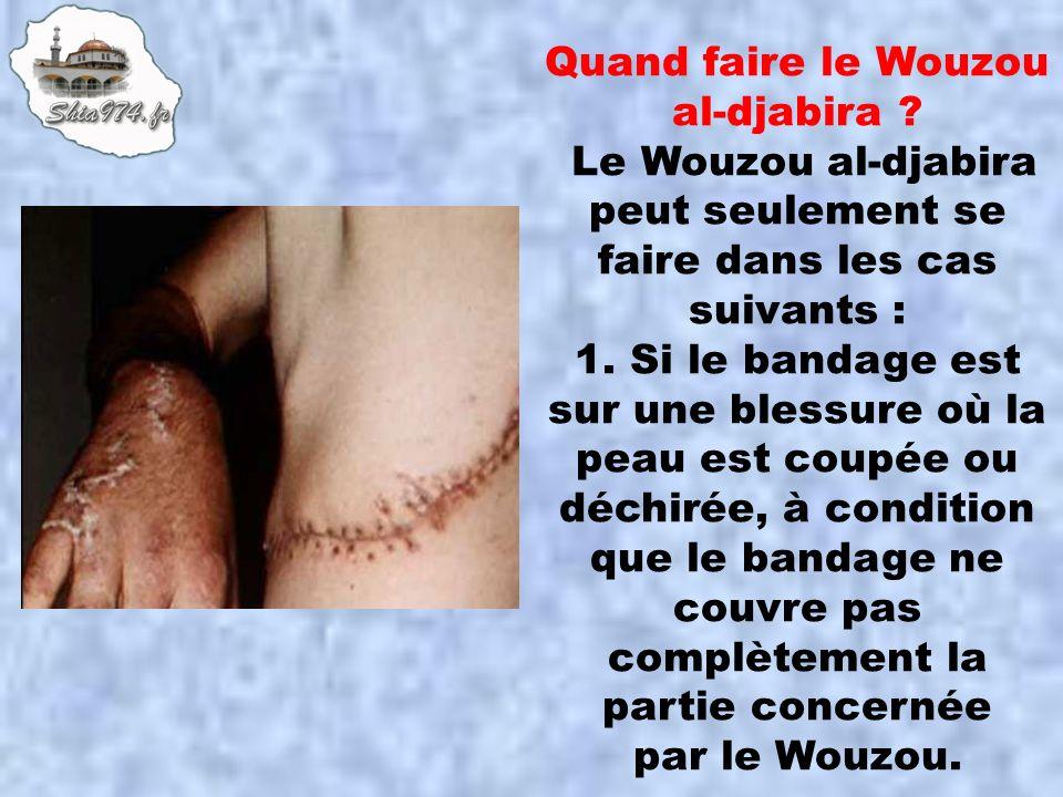 Quand faire le Wouzou al-djabira ? Le Wouzou al-djabira peut seulement se faire dans les cas suivants : 1. Si le bandage est sur une blessure où la pe