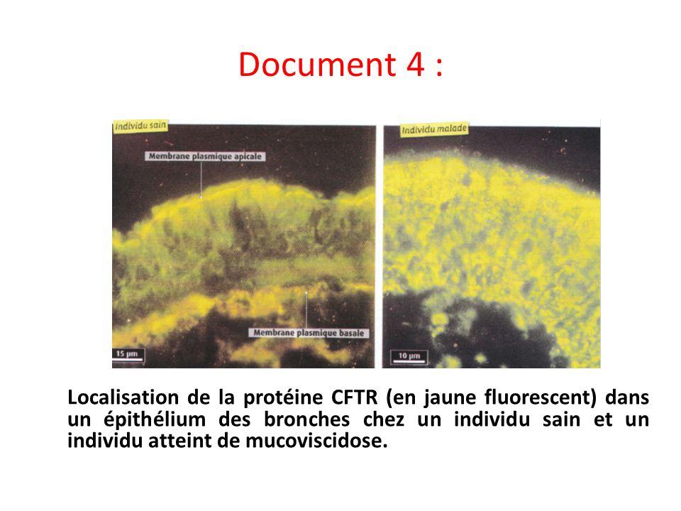 Document 4 : Localisation de la protéine CFTR (en jaune fluorescent) dans un épithélium des bronches chez un individu sain et un individu atteint de m
