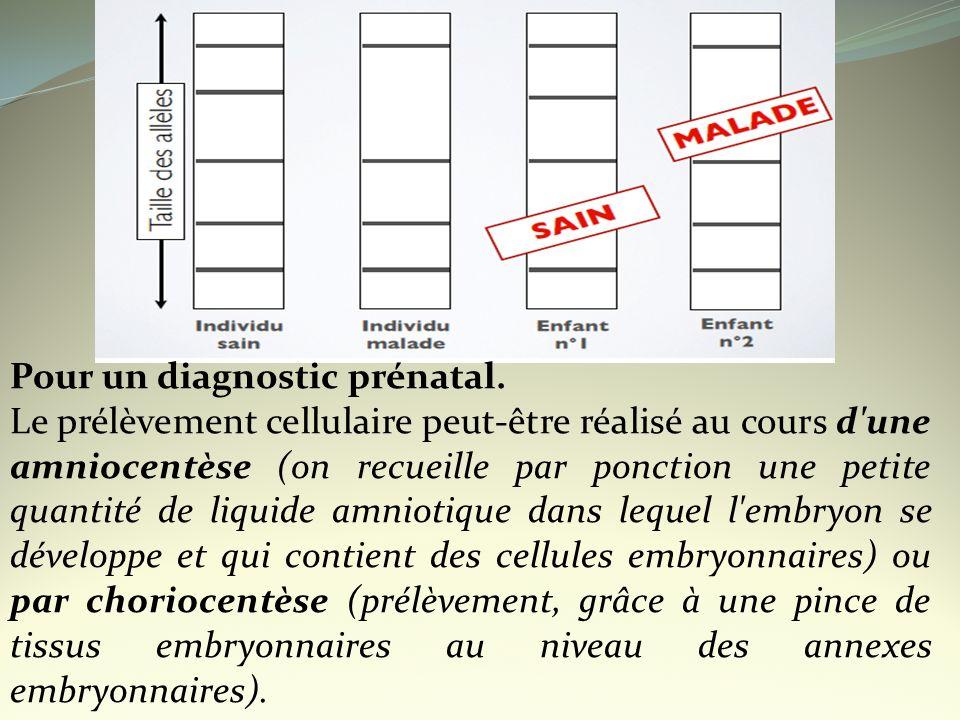 Pour un diagnostic prénatal. Le prélèvement cellulaire peut-être réalisé au cours d'une amniocentèse (on recueille par ponction une petite quantité de