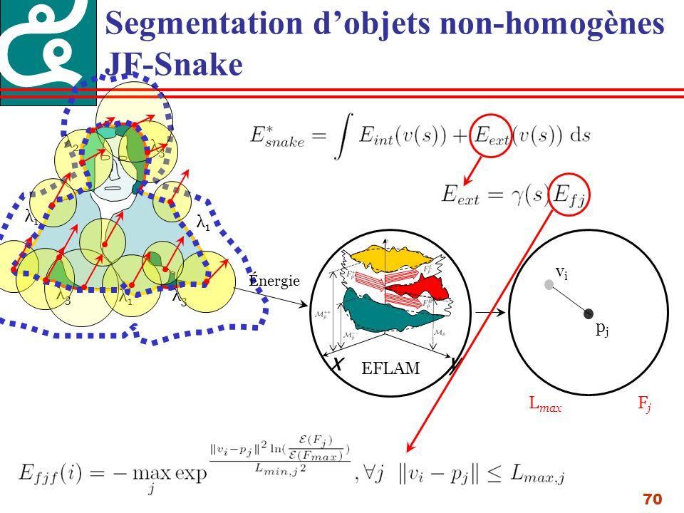 70 Segmentation dobjets non-homogènes JF-Snake λ1λ1 λ2λ2 λ3λ3 λ1λ1 λ3λ3 λ1λ1 λ3λ3 xy EFLAM Énergie L max FjFj pjpj vivi