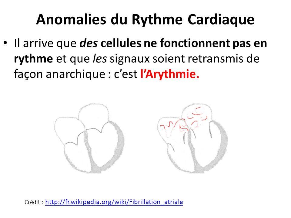 Anomalies du Rythme Cardiaque Il arrive que des cellules ne fonctionnent pas en rythme et que les signaux soient retransmis de façon anarchique : cest
