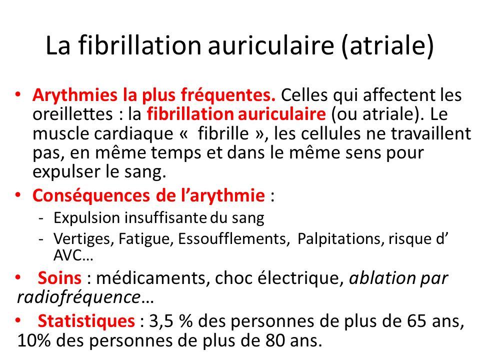 La fibrillation auriculaire (atriale) Arythmies la plus fréquentes. Celles qui affectent les oreillettes : la fibrillation auriculaire (ou atriale). L