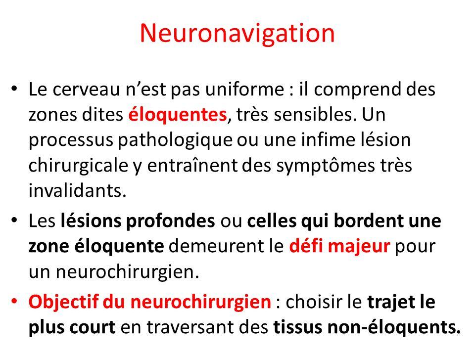 Neuronavigation Le cerveau nest pas uniforme : il comprend des zones dites éloquentes, très sensibles. Un processus pathologique ou une infime lésion