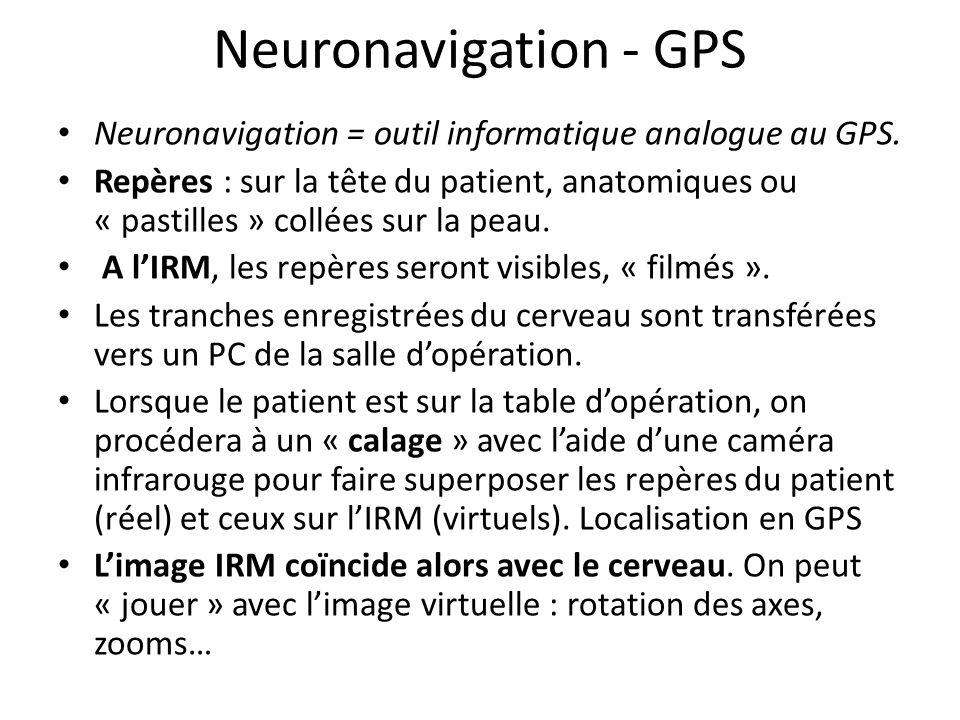 Neuronavigation - GPS Neuronavigation = outil informatique analogue au GPS. Repères : sur la tête du patient, anatomiques ou « pastilles » collées sur