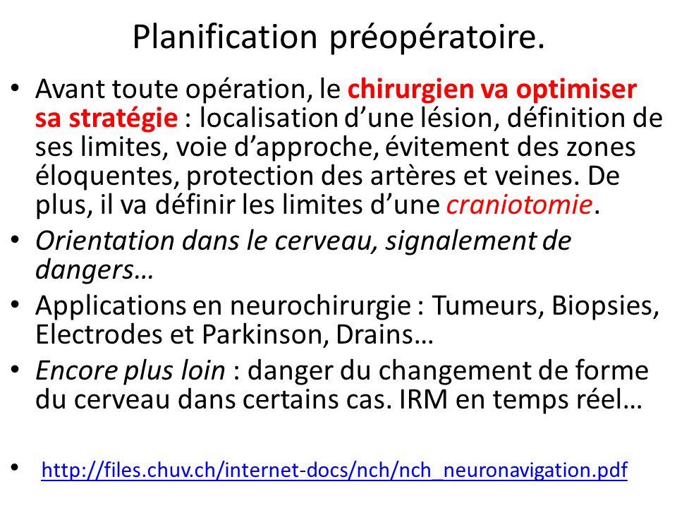 Planification préopératoire. Avant toute opération, le chirurgien va optimiser sa stratégie : localisation dune lésion, définition de ses limites, voi