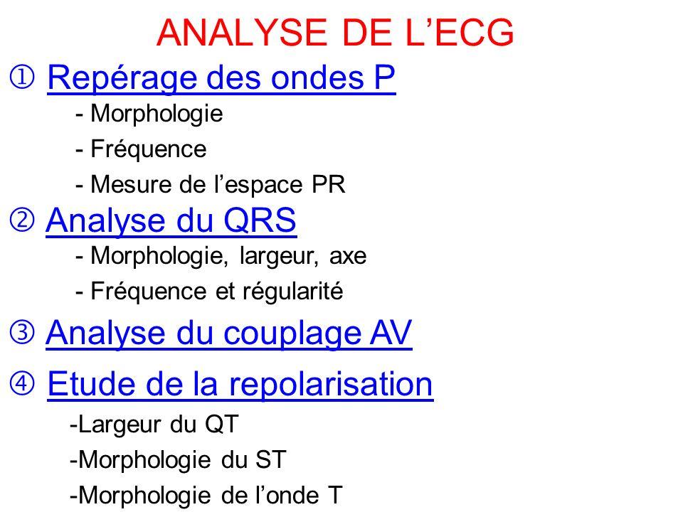 ANALYSE DE LECG Repérage des ondes P - Morphologie - Fréquence - Mesure de lespace PR Analyse du QRS - Morphologie, largeur, axe - Fréquence et régularité Analyse du couplage AV Etude de la repolarisation -Largeur du QT -Morphologie du ST -Morphologie de londe T