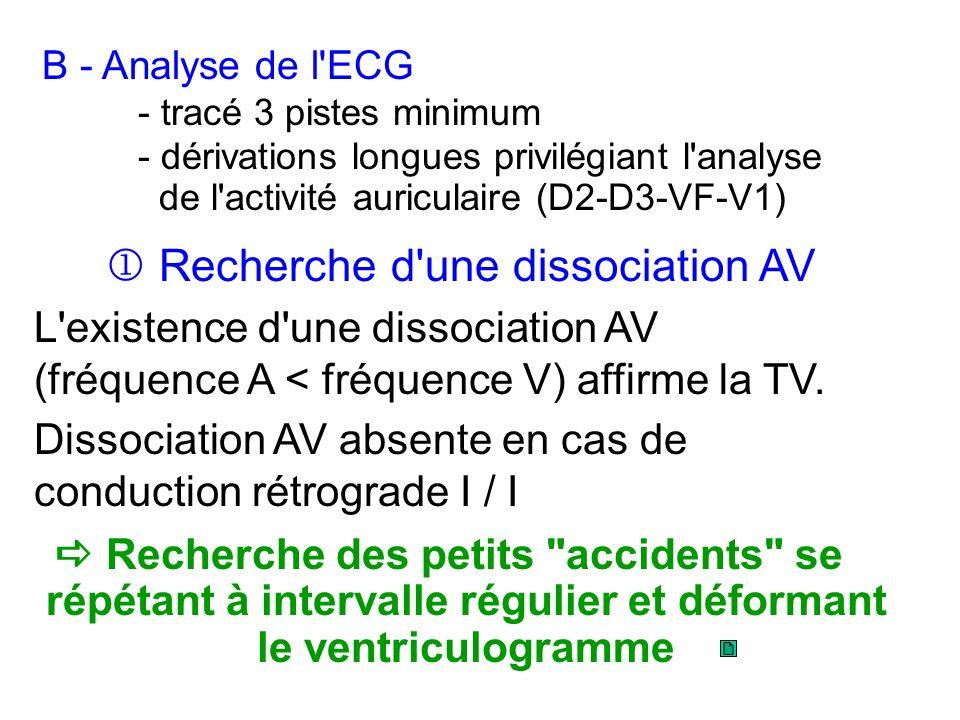 Recherche des petits accidents se répétant à intervalle régulier et déformant le ventriculogramme B - Analyse de l ECG - tracé 3 pistes minimum - dérivations longues privilégiant l analyse de l activité auriculaire (D2-D3-VF-V1) Recherche d une dissociation AV L existence d une dissociation AV (fréquence A < fréquence V) affirme la TV.