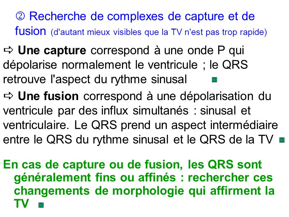 En cas de capture ou de fusion, les QRS sont généralement fins ou affinés : rechercher ces changements de morphologie qui affirment la TV Recherche de complexes de capture et de fusion (d autant mieux visibles que la TV n est pas trop rapide) Une capture correspond à une onde P qui dépolarise normalement le ventricule ; le QRS retrouve l aspect du rythme sinusal Une fusion correspond à une dépolarisation du ventricule par des influx simultanés : sinusal et ventriculaire.