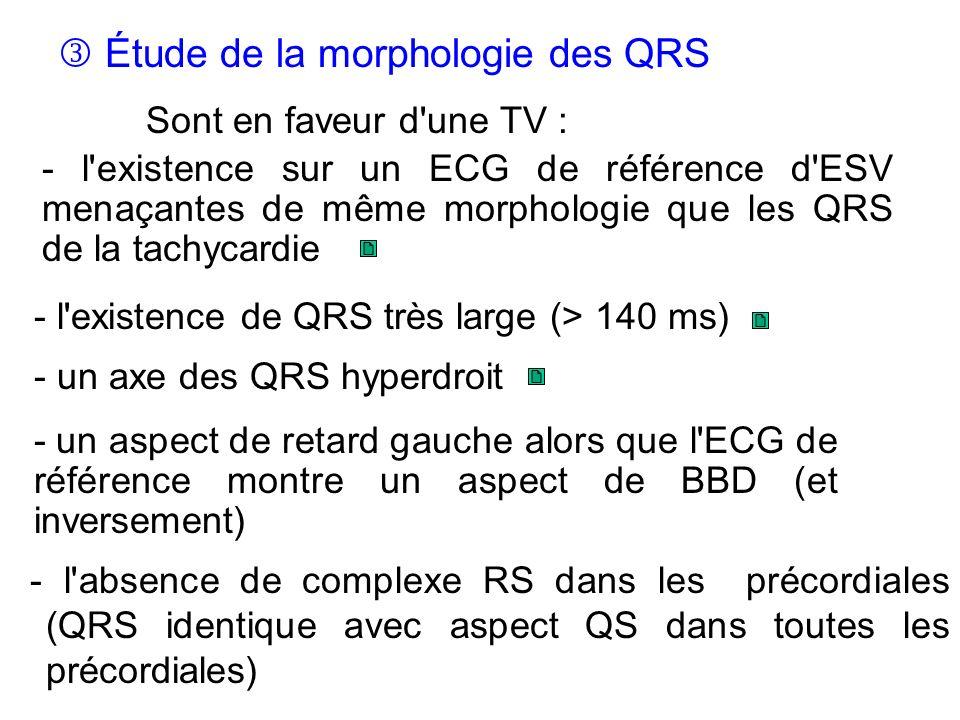 - l absence de complexe RS dans les précordiales (QRS identique avec aspect QS dans toutes les précordiales) Étude de la morphologie des QRS Sont en faveur d une TV : - un aspect de retard gauche alors que l ECG de référence montre un aspect de BBD (et inversement) - l existence de QRS très large (> 140 ms) - un axe des QRS hyperdroit - l existence sur un ECG de référence d ESV menaçantes de même morphologie que les QRS de la tachycardie