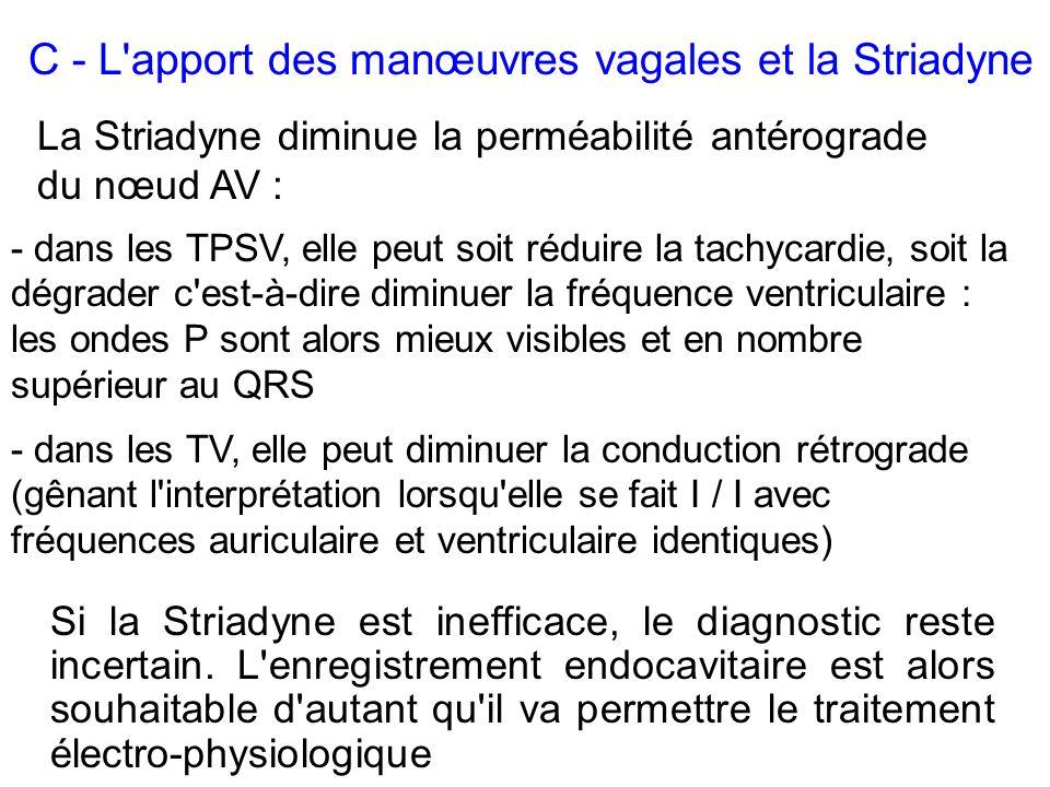 Si la Striadyne est inefficace, le diagnostic reste incertain. L'enregistrement endocavitaire est alors souhaitable d'autant qu'il va permettre le tra