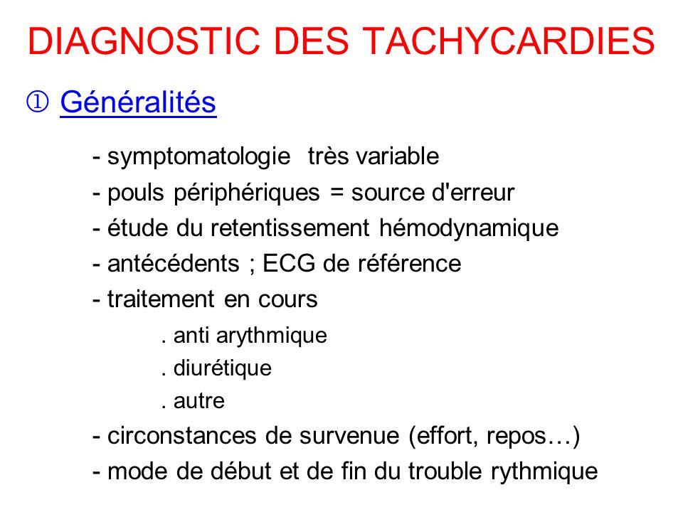 DIAGNOSTIC DES TACHYCARDIES Généralités - symptomatologie très variable - pouls périphériques = source d erreur - étude du retentissement hémodynamique - antécédents ; ECG de référence - traitement en cours.