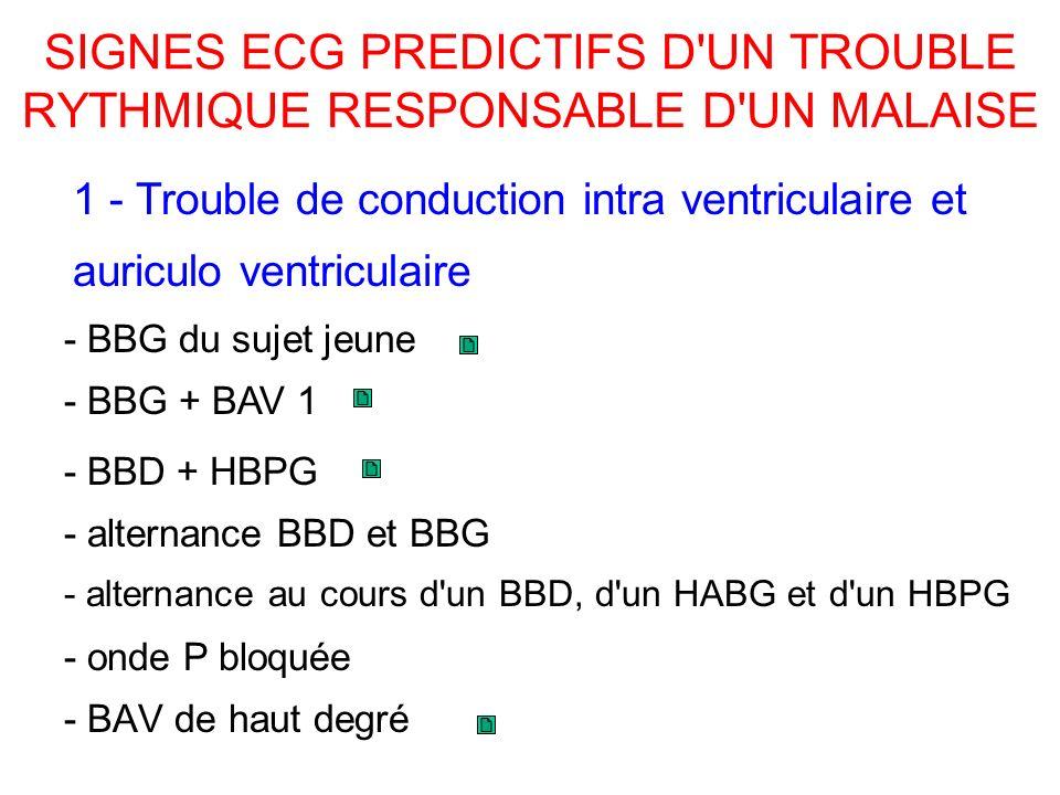 SIGNES ECG PREDICTIFS D UN TROUBLE RYTHMIQUE RESPONSABLE D UN MALAISE - BAV de haut degré 1 - Trouble de conduction intra ventriculaire et auriculo ventriculaire - alternance BBD et BBG - alternance au cours d un BBD, d un HABG et d un HBPG - onde P bloquée - BBG du sujet jeune - BBG + BAV 1 - BBD + HBPG