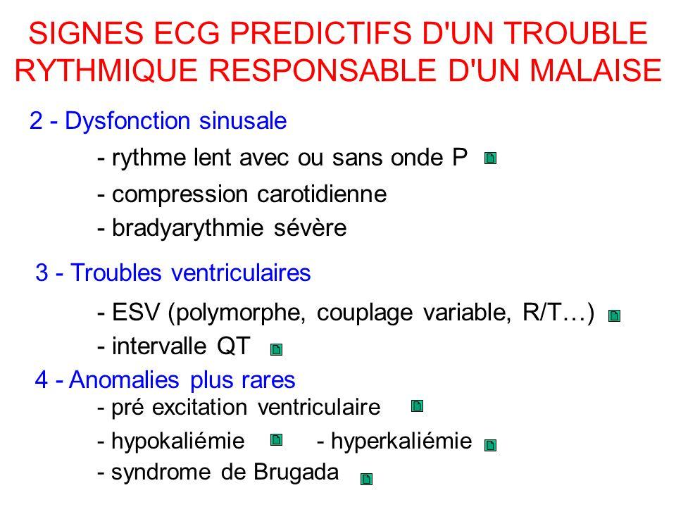 SIGNES ECG PREDICTIFS D UN TROUBLE RYTHMIQUE RESPONSABLE D UN MALAISE - syndrome de Brugada 2 - Dysfonction sinusale - bradyarythmie sévère 3 - Troubles ventriculaires 4 - Anomalies plus rares - hyperkaliémie - rythme lent avec ou sans onde P - compression carotidienne - ESV (polymorphe, couplage variable, R/T…) - intervalle QT - pré excitation ventriculaire - hypokaliémie
