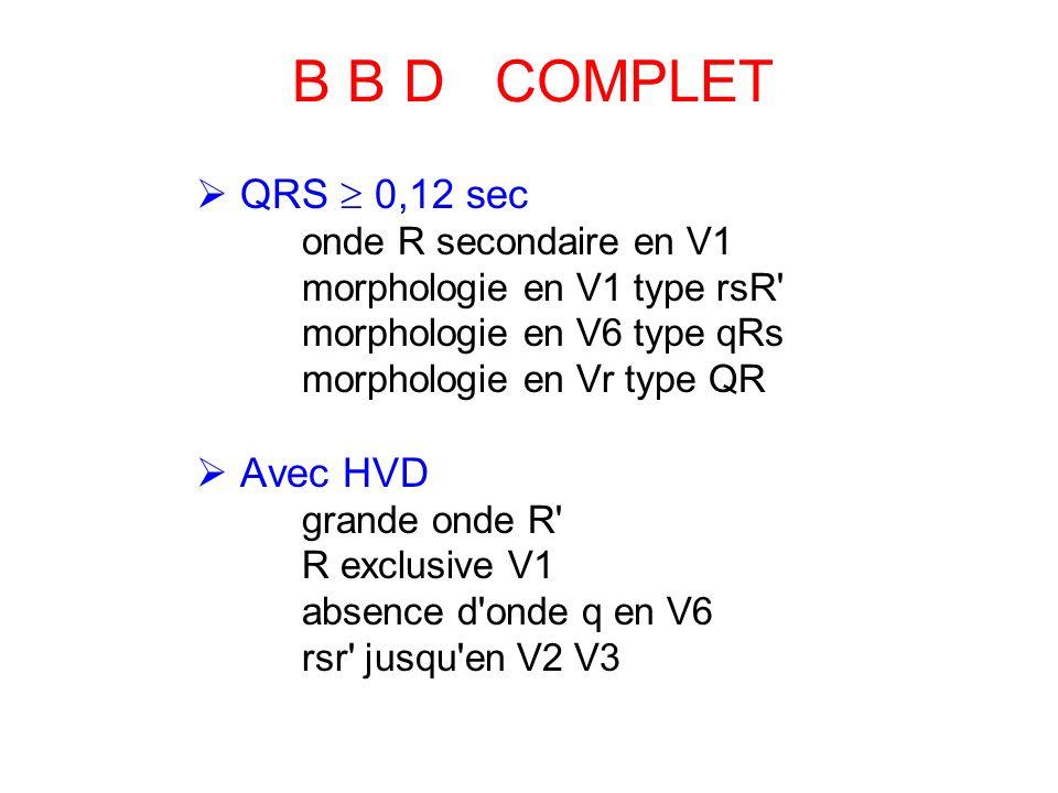 B B D COMPLET QRS 0,12 sec onde R secondaire en V1 morphologie en V1 type rsR morphologie en V6 type qRs morphologie en Vr type QR Avec HVD grande onde R R exclusive V1 absence d onde q en V6 rsr jusqu en V2 V3