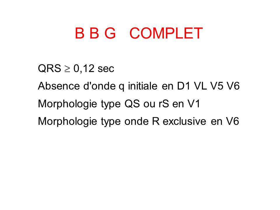 B B G COMPLET QRS 0,12 sec Absence d'onde q initiale en D1 VL V5 V6 Morphologie type QS ou rS en V1 Morphologie type onde R exclusive en V6