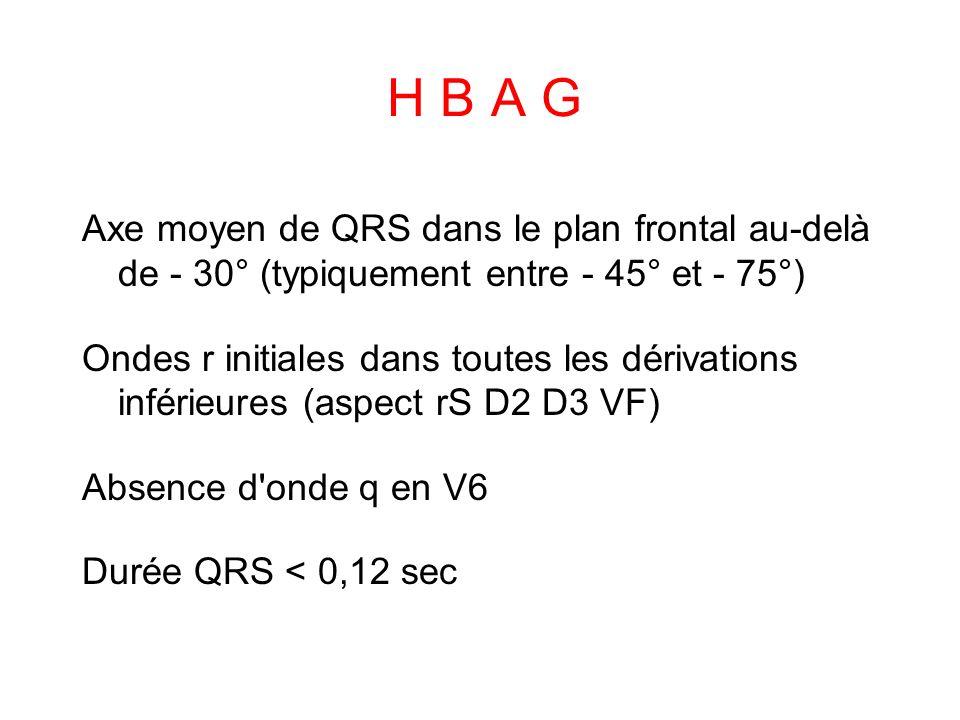 H B A G Axe moyen de QRS dans le plan frontal au-delà de - 30° (typiquement entre - 45° et - 75°) Ondes r initiales dans toutes les dérivations inférieures (aspect rS D2 D3 VF) Absence d onde q en V6 Durée QRS < 0,12 sec