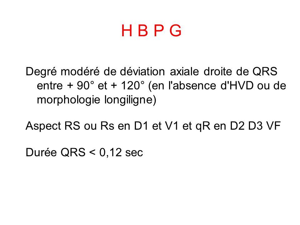 H B P G Degré modéré de déviation axiale droite de QRS entre + 90° et + 120° (en l absence d HVD ou de morphologie longiligne) Aspect RS ou Rs en D1 et V1 et qR en D2 D3 VF Durée QRS < 0,12 sec
