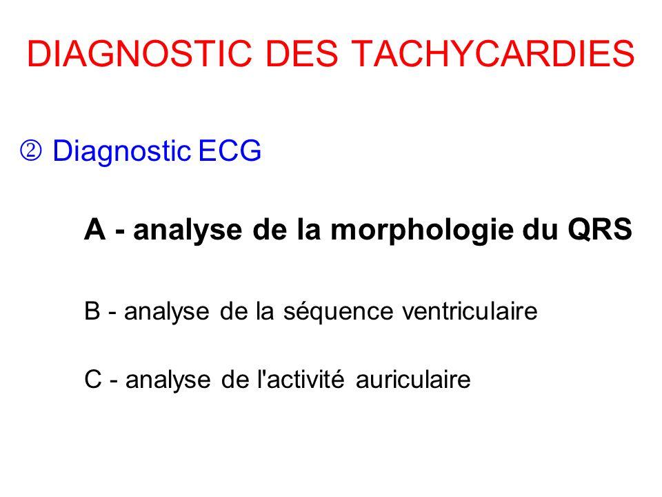 DIAGNOSTIC DES TACHYCARDIES Diagnostic ECG A - analyse de la morphologie du QRS B - analyse de la séquence ventriculaire C - analyse de l'activité aur
