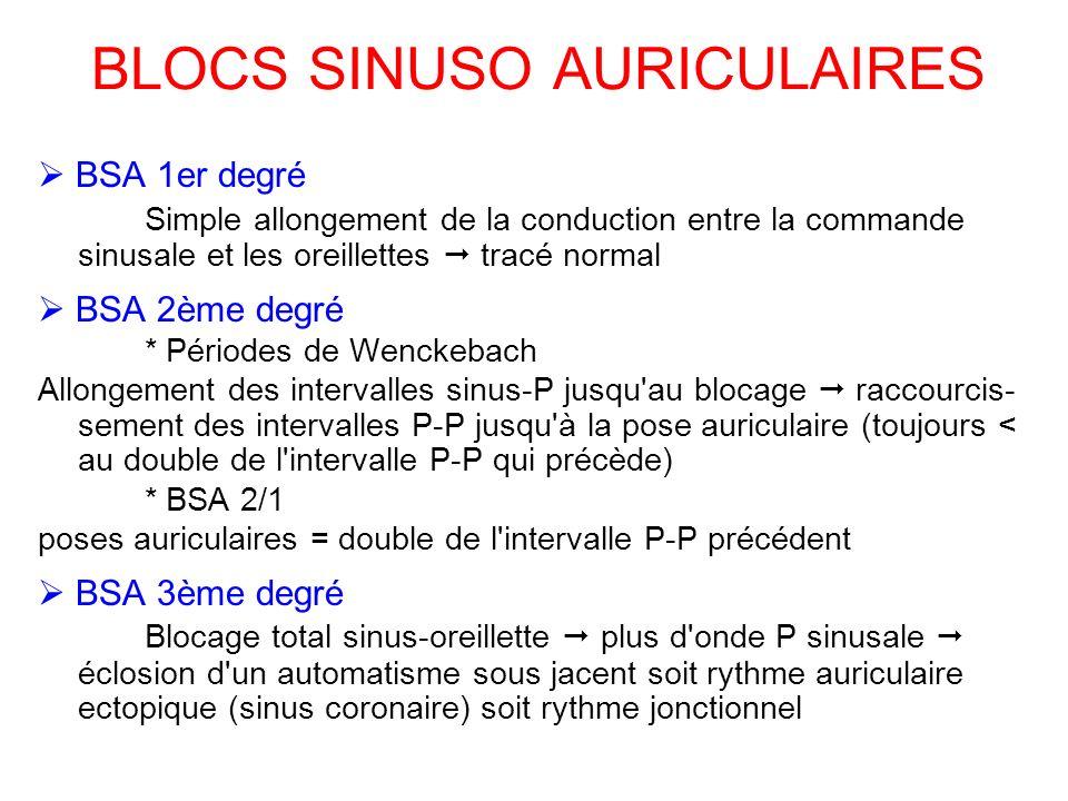 BLOCS SINUSO AURICULAIRES BSA 1er degré Simple allongement de la conduction entre la commande sinusale et les oreillettes tracé normal BSA 2ème degré * Périodes de Wenckebach Allongement des intervalles sinus-P jusqu au blocage raccourcis- sement des intervalles P-P jusqu à la pose auriculaire (toujours < au double de l intervalle P-P qui précède) * BSA 2/1 poses auriculaires = double de l intervalle P-P précédent BSA 3ème degré Blocage total sinus-oreillette plus d onde P sinusale éclosion d un automatisme sous jacent soit rythme auriculaire ectopique (sinus coronaire) soit rythme jonctionnel