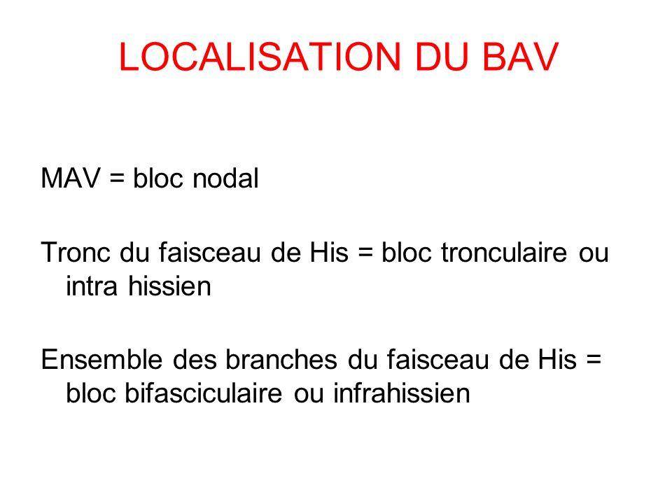 LOCALISATION DU BAV MAV = bloc nodal Tronc du faisceau de His = bloc tronculaire ou intra hissien Ensemble des branches du faisceau de His = bloc bifa