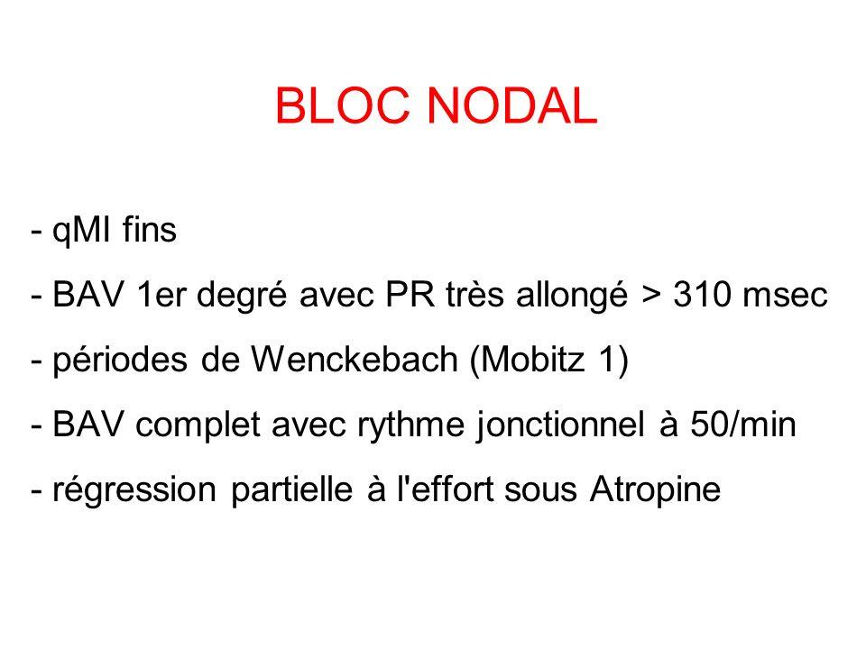 BLOC NODAL - qMI fins - BAV 1er degré avec PR très allongé > 310 msec - périodes de Wenckebach (Mobitz 1) - BAV complet avec rythme jonctionnel à 50/min - régression partielle à l effort sous Atropine